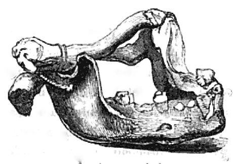 Human Jaw Bracelet (MacGillivray, Narrative of the Voyage of the Rattlesnake)